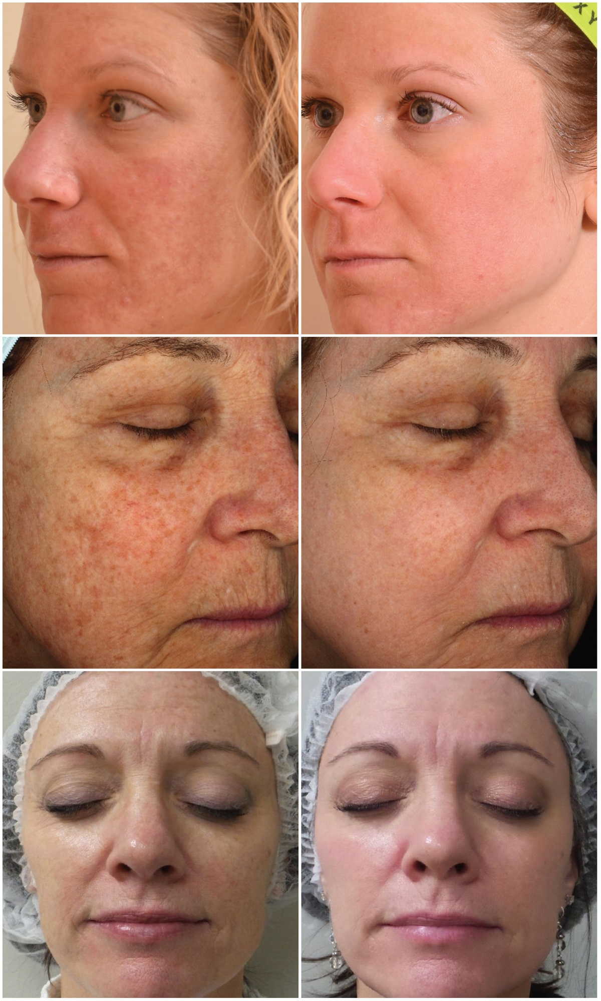 before and after sciton halo laser