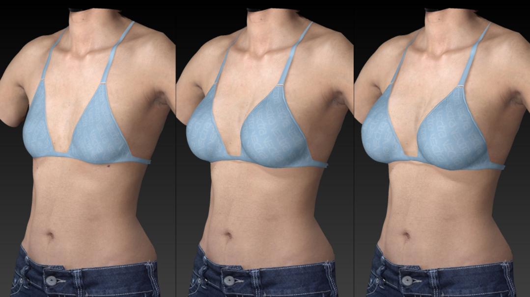 breast augmentation simulator