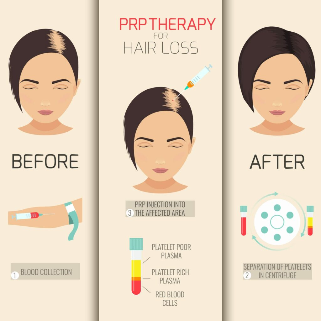 how prp hair growth works