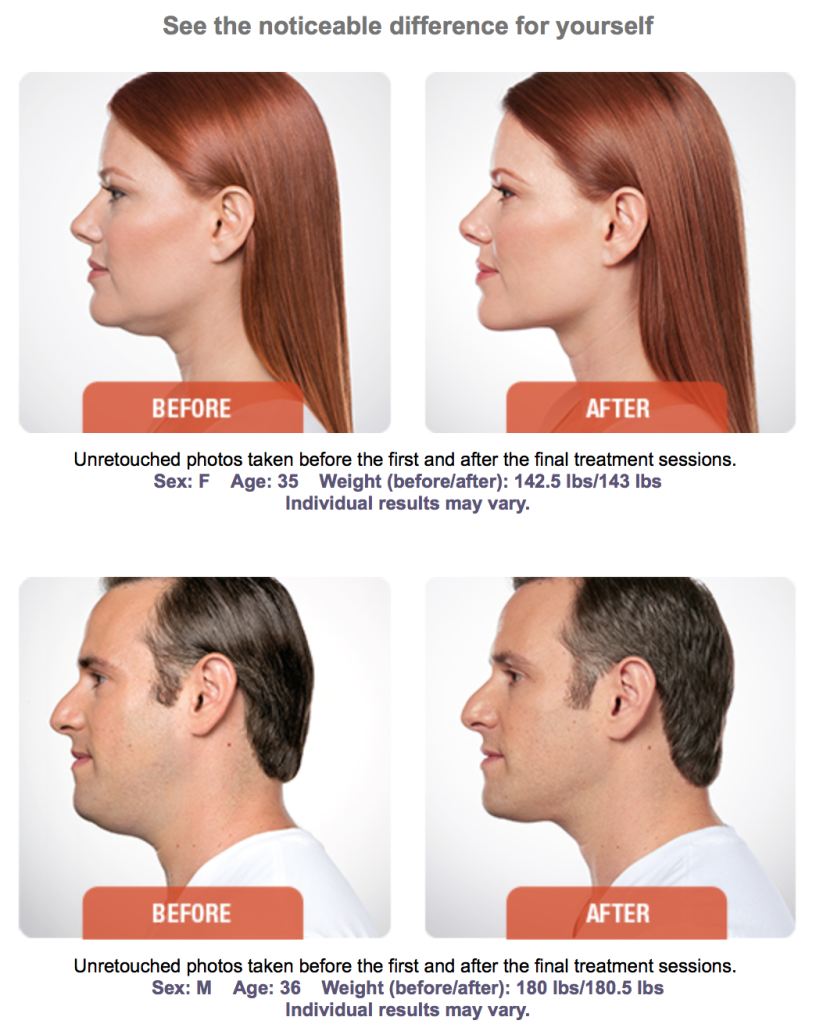 before and after kybella